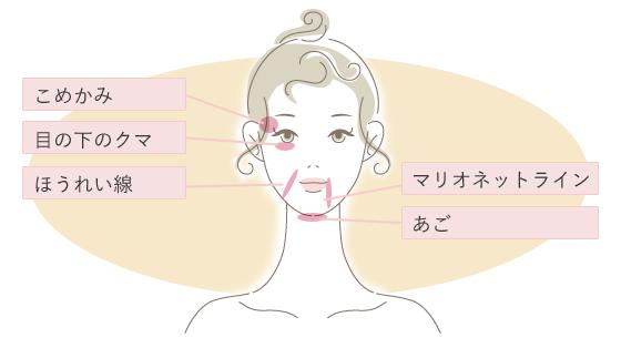 ヒアルロン酸注入(自由が丘 Mスキンケアクリニック しわ・たるみ治療)
